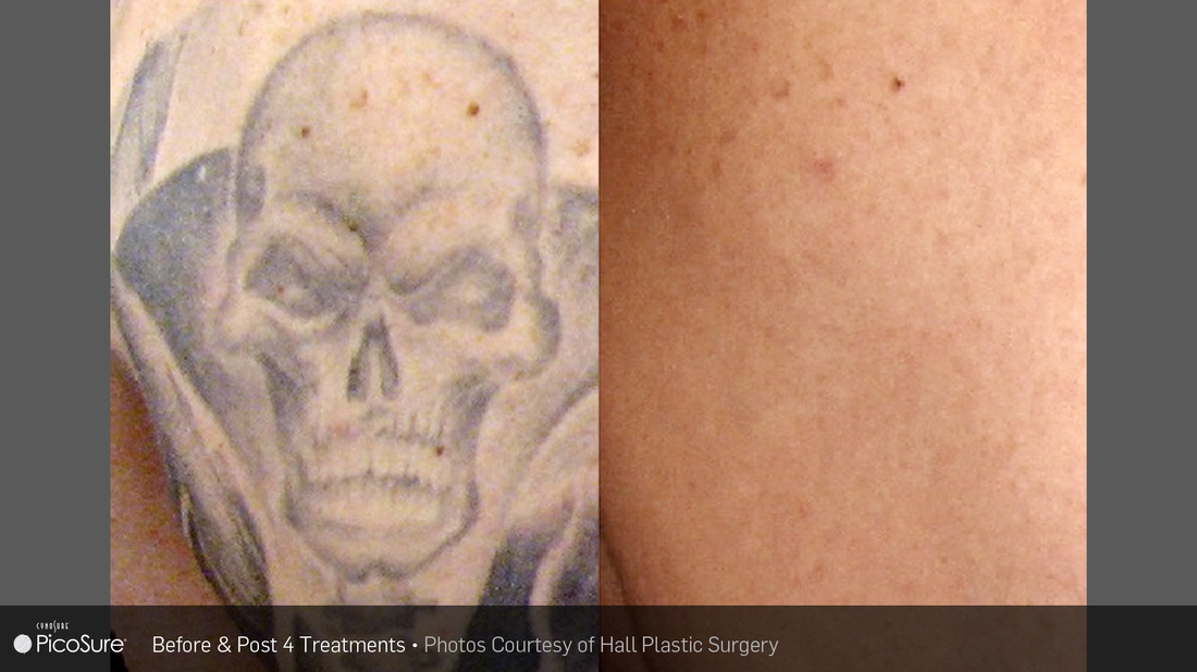 Laser Tattoo Removal Imperial Valley and Yuma - El Centro Dermatology